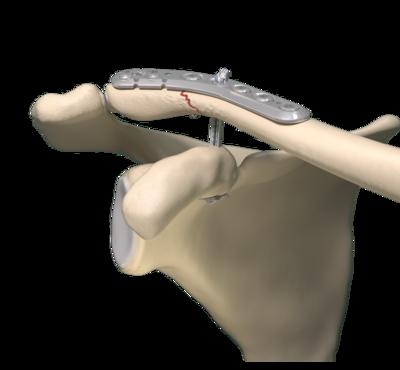 Clavicle fracture repair 0 large